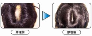 分髪交換+全体増毛ほか