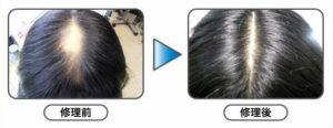分髪交換+全体増毛