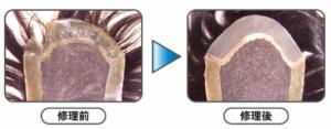 ベース欠損部交換+ネット交換と全体増毛