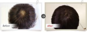 ベースの劣化による毛抜けの為部分増毛